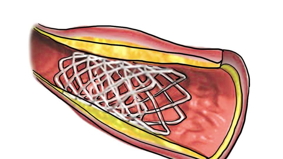 On February 15, the government slashed stent prices in the country by nearly 75%