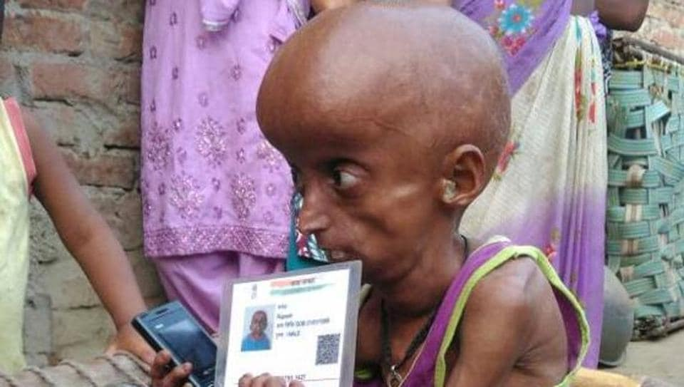 Progeria patient Rupesh lives with his parents in Dharecha village of Hanumanganj in Allahabad district.