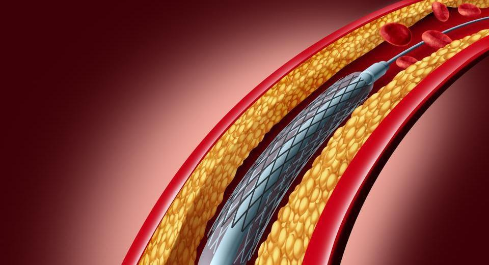 In February this year, Indian government capped the prices of coronary stents.