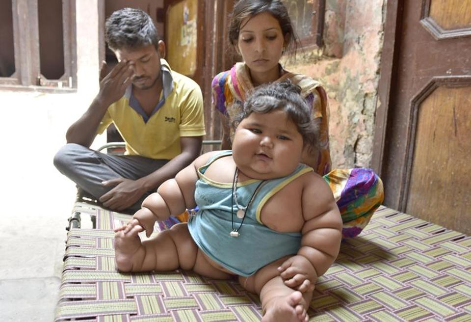 Chahat,obesity,hormonal obesity