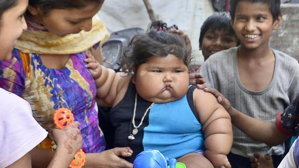 GNDH,9-month-old,infant who weighs double