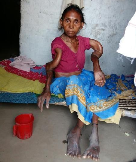 Skeletal fluorosis patient Rampatia Devi at Pratappur village