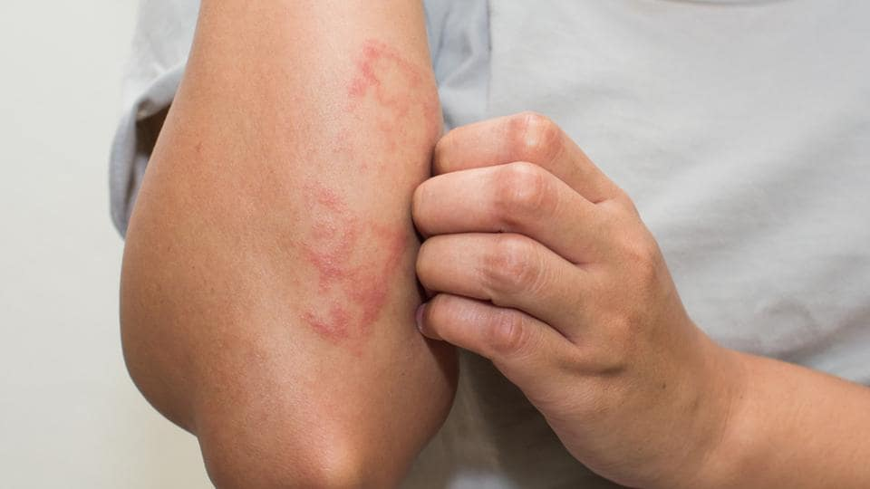 Eczema causes and symptoms in adults
