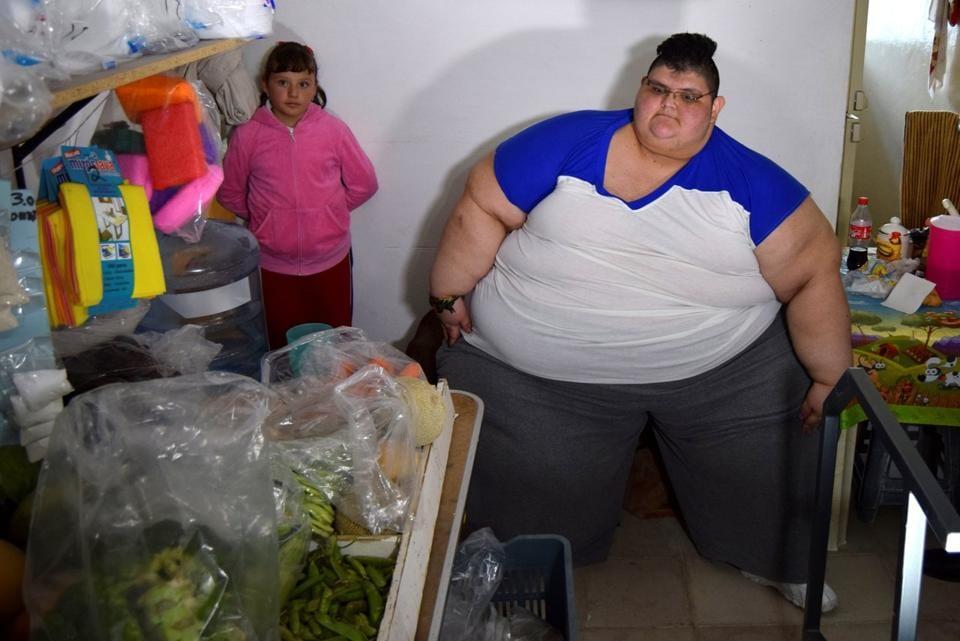 heaviest man,fattest man,gastric bypass surgery
