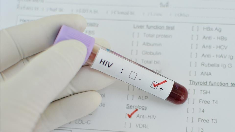People who started taking antiretroviral treatment (ART) in 2008 or thereafter lived longer, healthier lives than those who started treatment in earlier years.