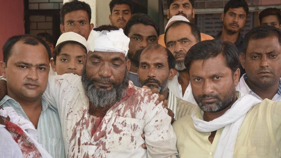 The victims were on their way to Naifal, near NH-24, from Dasna when three persons on an Apache rammed their bike. 48-year-old Shahabuddin  was severely injured.