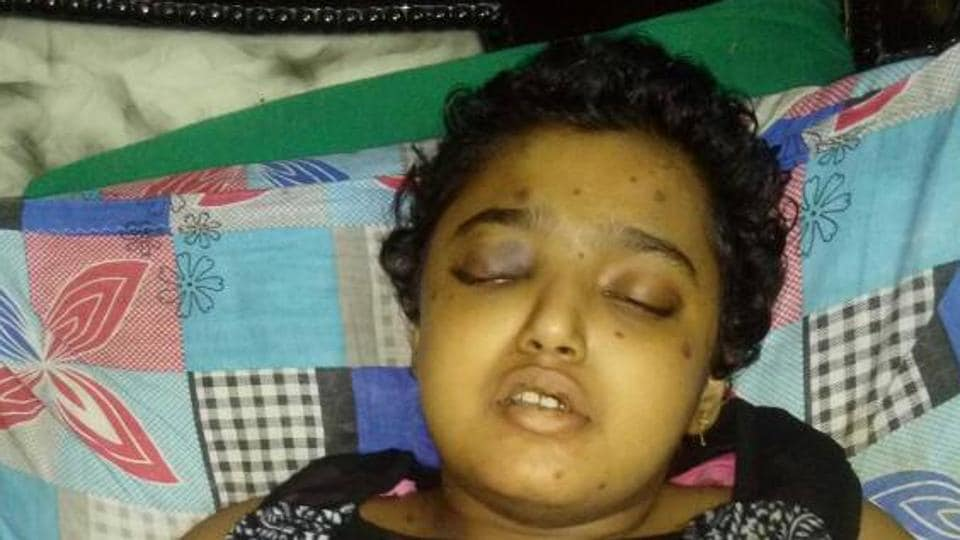 Sai Sri died of bone marrow cancer on Sunday.