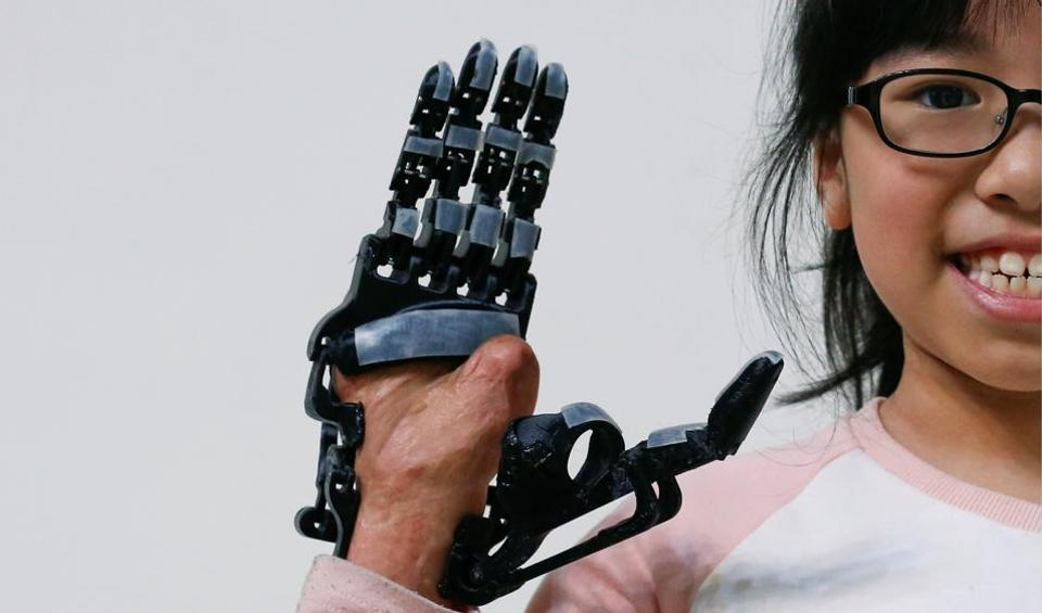 A girl who injured her hand in a scalding accident when she was nine months old, poses for a photograph wearing a 3D-printed prosthetic hand designed and built by an engineer in Taiwan. Traditionally, a prosthetist took great care to avoid damage to nerves and tender areas that are not tolerant to pressure thus taking time to make a prosthetic hand. But with a 3D scanner, a digital image could  be made in half an hour. 3D printing is the process of creating solid, three-dimensional objects from digital files and is being used in all sorts of applications worldwide to solve everyday problems changing people's lives in the process. (Tyrone Siu /REUTERS)