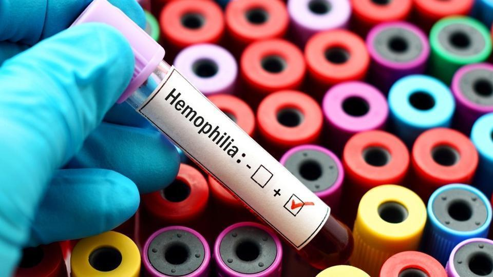 Shortage of haemophilia drugs force patients to travel out of Mumbai