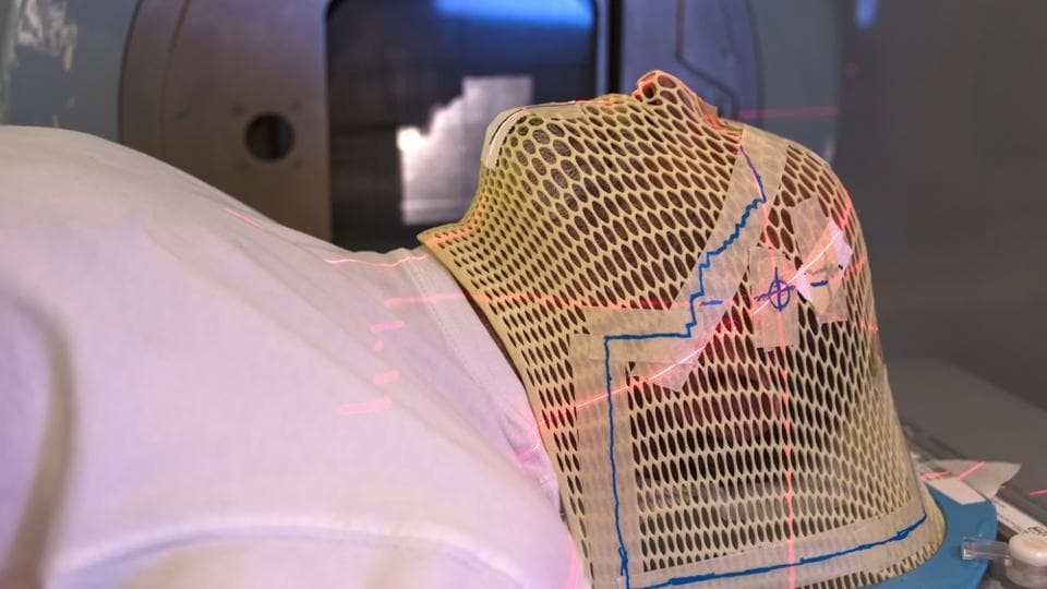 Patient radiation therapy mask showing laser lines for targeting cancer cells in the brain.