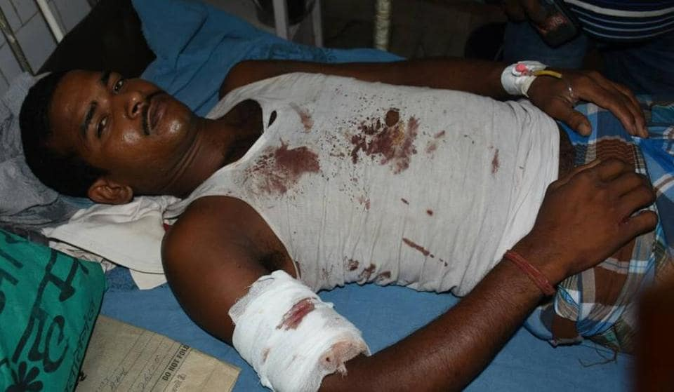An injured Chhotu Yadav undergoing treatment at JLNMCH after being shot at by his father in Bhagalpur.