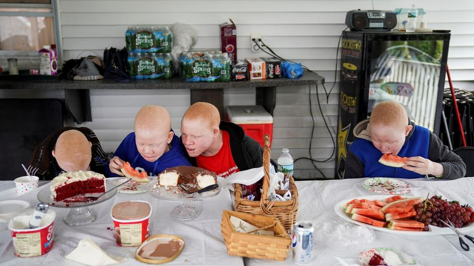 In the above photo, children have dinner at a charity operated temporary foster home in New York. Their travel and housing expenses were covered by a charity that helps children who have been injured in conflicts or disasters. (Carlo Allegri/REUTERS)