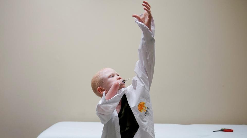 A Tanzanian child with albinism who had an arm chopped off in a witchcraft- driven attack puts on his shirt during a prosthetic fitting  at a hospital in Philadelphia, United States. Albinism in humans is a genetic disorder characterized by complete or partial absence of pigment in the skin, hair and eyes. Albinos are attacked for their body parts, which are highly prized in witchcraft and can fetch a large amount of money. Superstition also leads many people in Tanzania to believe that albinos are ghosts who bring bad luck. (Carlo Allegri/REUTERS)