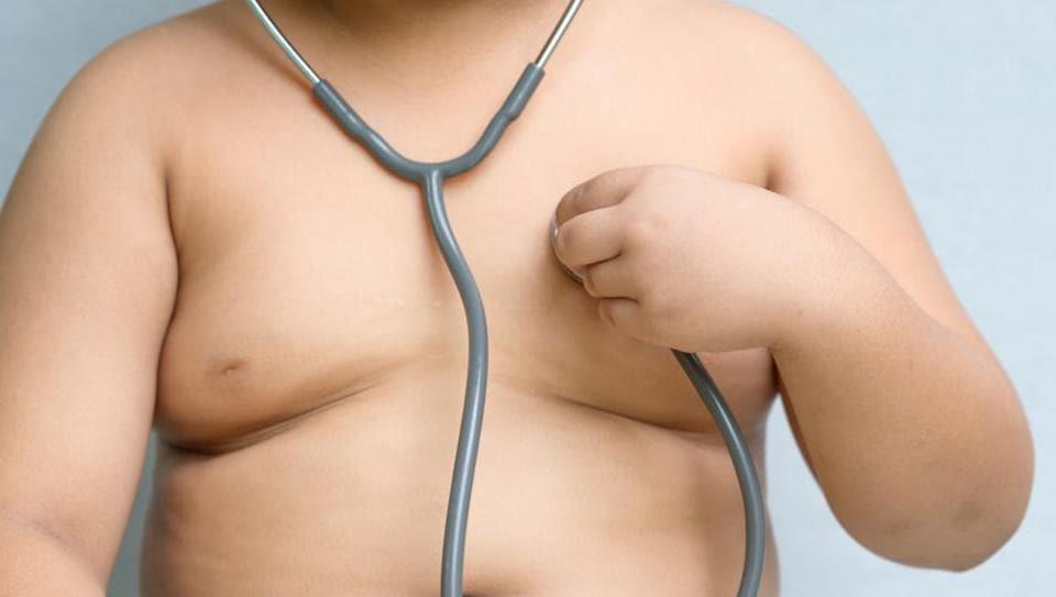 Obesity,Obese Children,BMI
