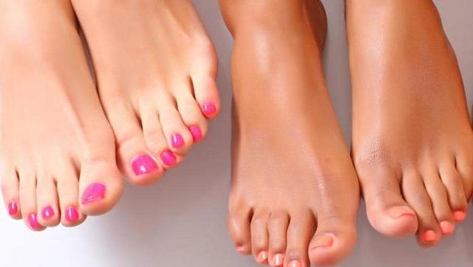 Footcare,Happy feet,How to remove calluses