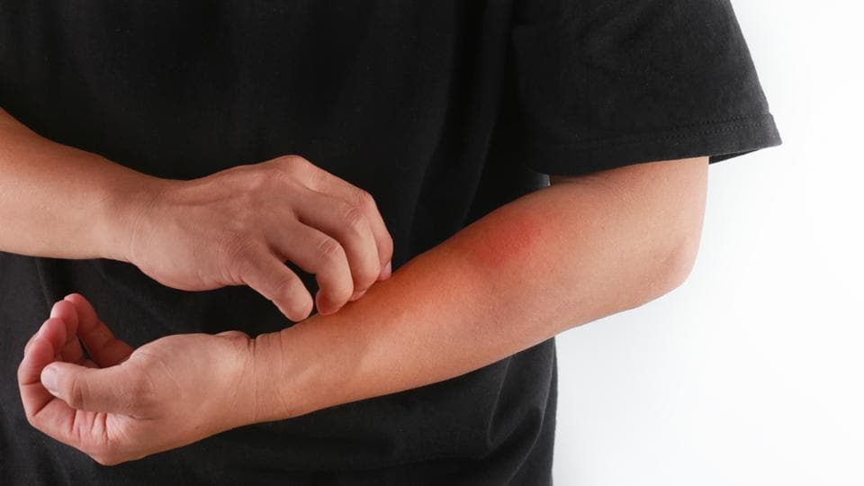 Eczema,Eczema Heart Connection,Heart Disease