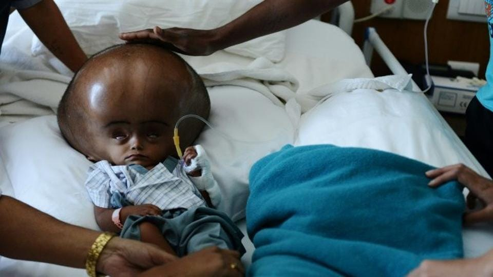 The five-year-old was born with hydrocephalus, a potentially fatal condition that causes cerebrospinal fluid to build up on the brain.