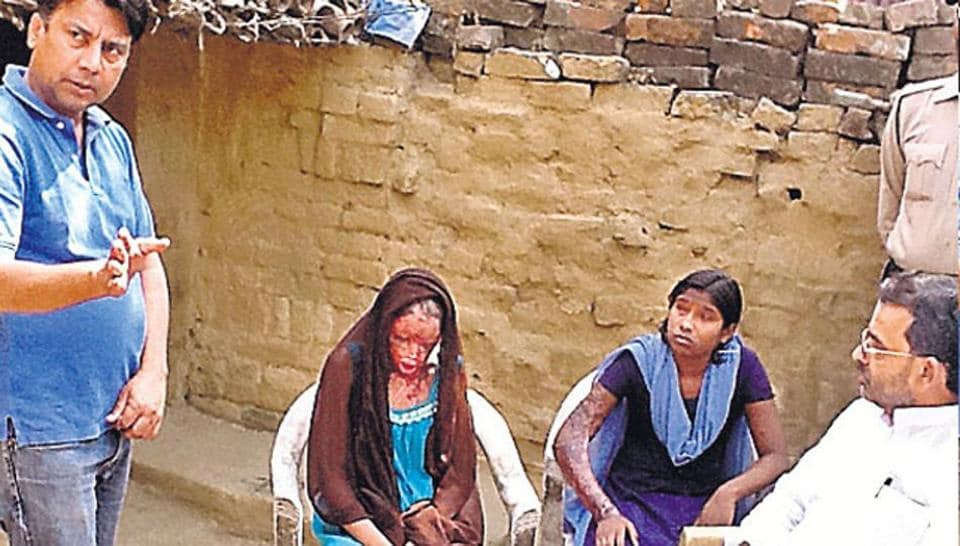 Chanchal & Sonam recall how four youths poured acid on them at their Maner (Patna),  home on October 21, 2012.