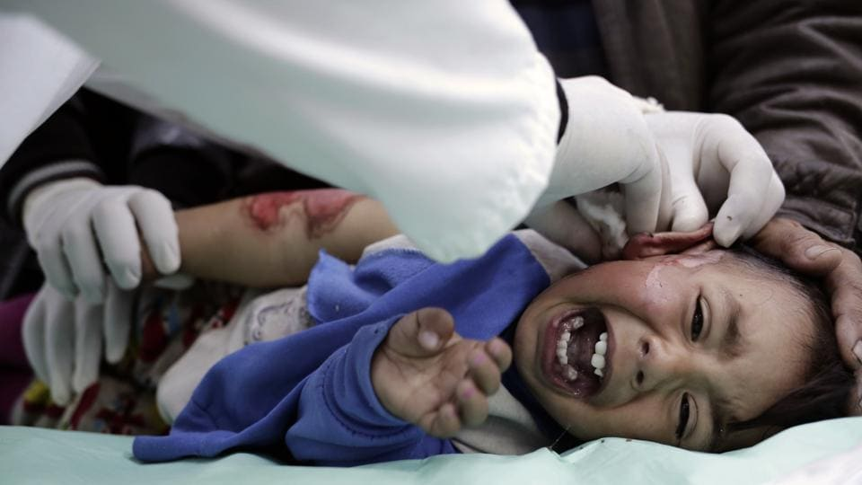 A child with severe burns, from scalding water, cries out in pain as a medic cleans his wounds at a hospital in the Zahra neighborhood of Mosul, Iraq.