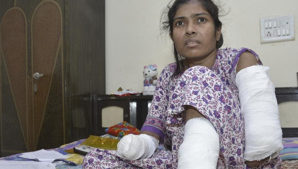 Neelam Kumari, 30, lost both hands after she came into contact with an 11 KV high-tension wire hanging outside the balcony of her flat in Ghaziabad.