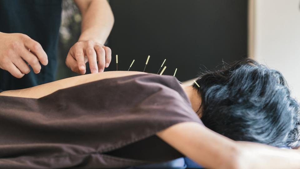 Acupuncture is a traditional Chinese medicine therapy.