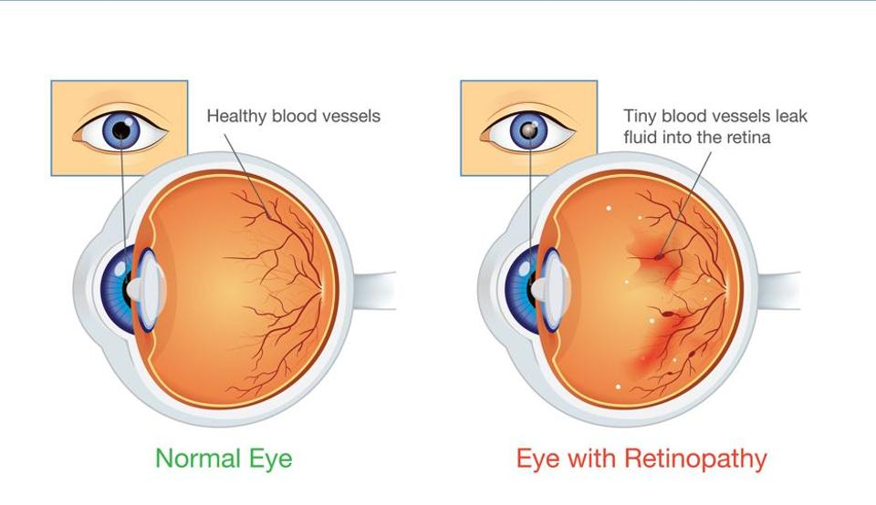Patients with sleep apnoea and Type 2 diabetes may also be at an increased risk of developing advanced diabetic retinopathy over a period of three years and seven months.