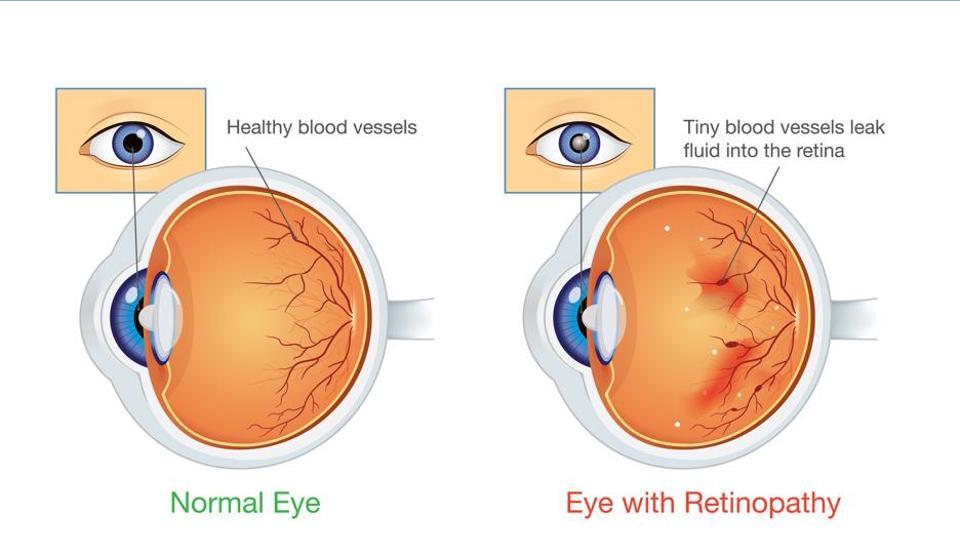 abcdd4a582b Eye to eye  Diabetes