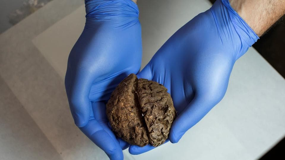 Fernando Serrulla, a forensic anthropologist of the Aranzadi Science Society, shows one of the 45 brains saponified of those killed by forces of the dictator Francisco Franco.