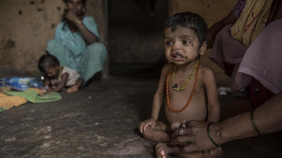 Mumbai news,Palghar,malnutrition