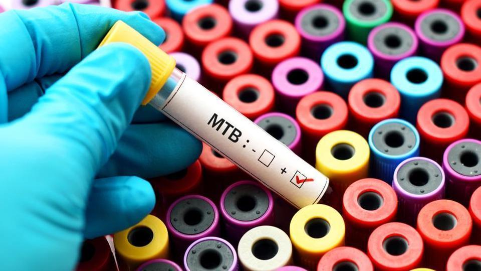 Mumbai news,health,tuberculosis