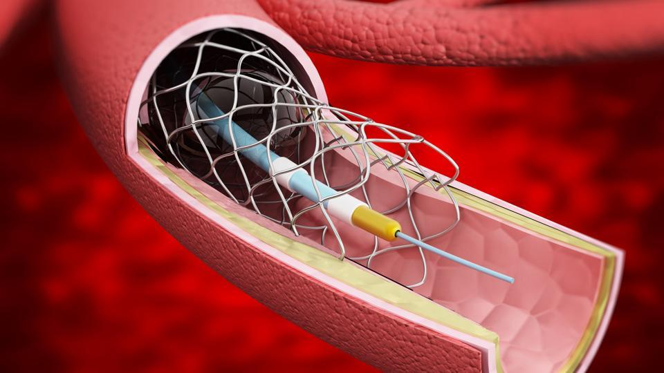 Stents in India,Stents,Health ministry