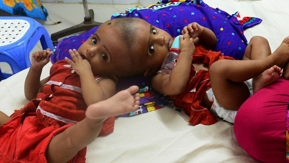 Bangladeshi conjoined twins baby girls Rabia and Rukia during their visit to a hospital in Dhaka.