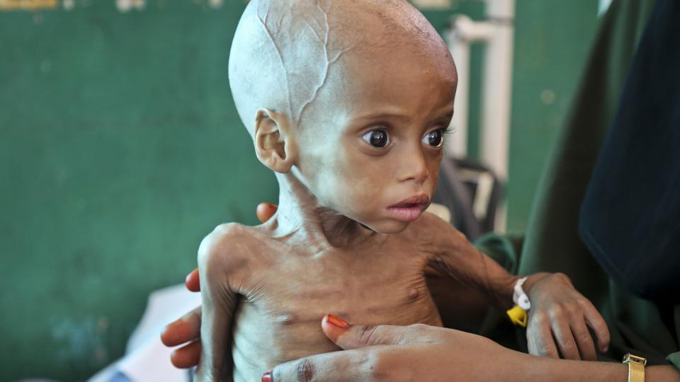 A malnourished child Sacdiyo Mohamed, 9 months old, is treated at the Banadir Hospital after her mother Halima Hassan Mohamed fled the drought in southern Somalia and travelled by car to the capital Mogadishu, in Somalia five months ago.  (Mohamed Sheikh Nor / AP)