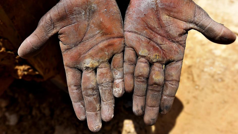The hands of a mine worker are covered with fine dust. According to an affidavit filed in the Supreme Court this year by the Centre, over 1.4 lakh people work in Rajasthan's mines and all could be afflicted by the lung disease. Despite being one of the oldest known occupational hazards, cases of silicosis are often miscounted as tuberculosis as silicosis primarily renders the respiratory system vulnerable to other terminal diseases.   (Raj K Raj / HT Photo)