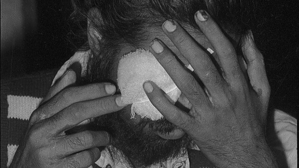 In a period spanning 1979 to 1980, Bhagalpur in Bihar witnessed a series of incidents where undertrials or convicts were blinded by police by either pouring acid or piercing their eyes. The event, later known as the Bhagalpur Blindings stand as a jurisprudential landmark, as the first instance of the Indian Supreme Court ordering compensation for the violation of basic human rights. (Ajit Kumar / HT Archive)