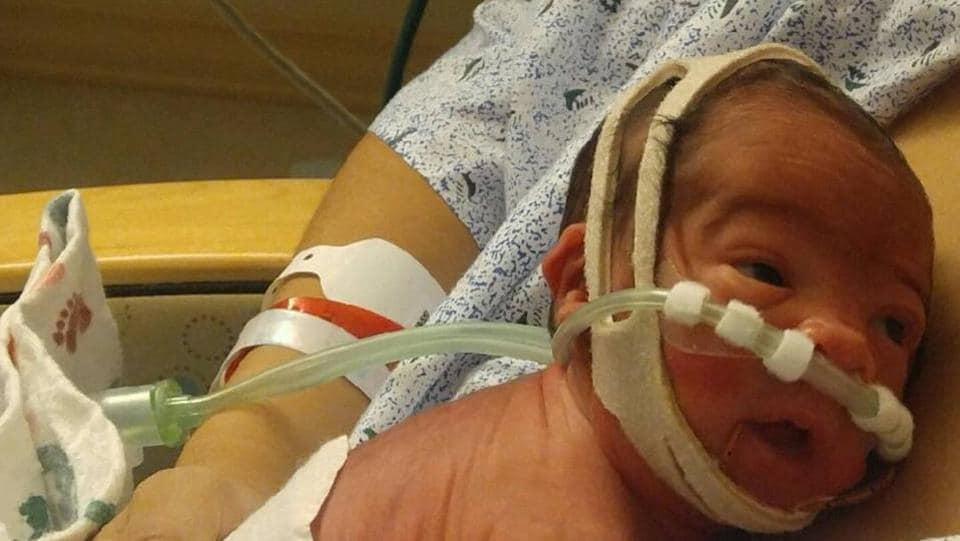 amniotic sac,premature baby,en caul
