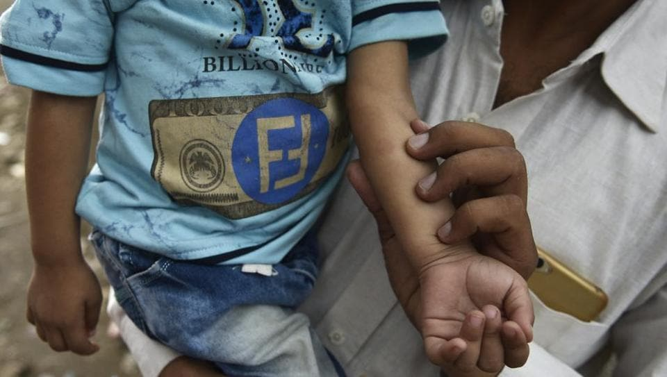 A man holds his dengue-infected two-year old's hand to show mosquito bites.