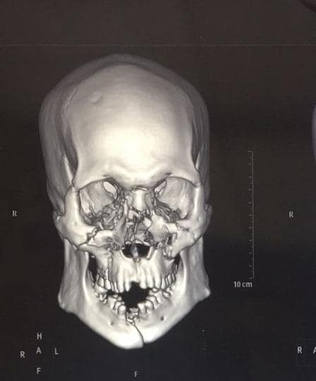 23-year-old biker fractured all his facial bones in a road traffic accident.