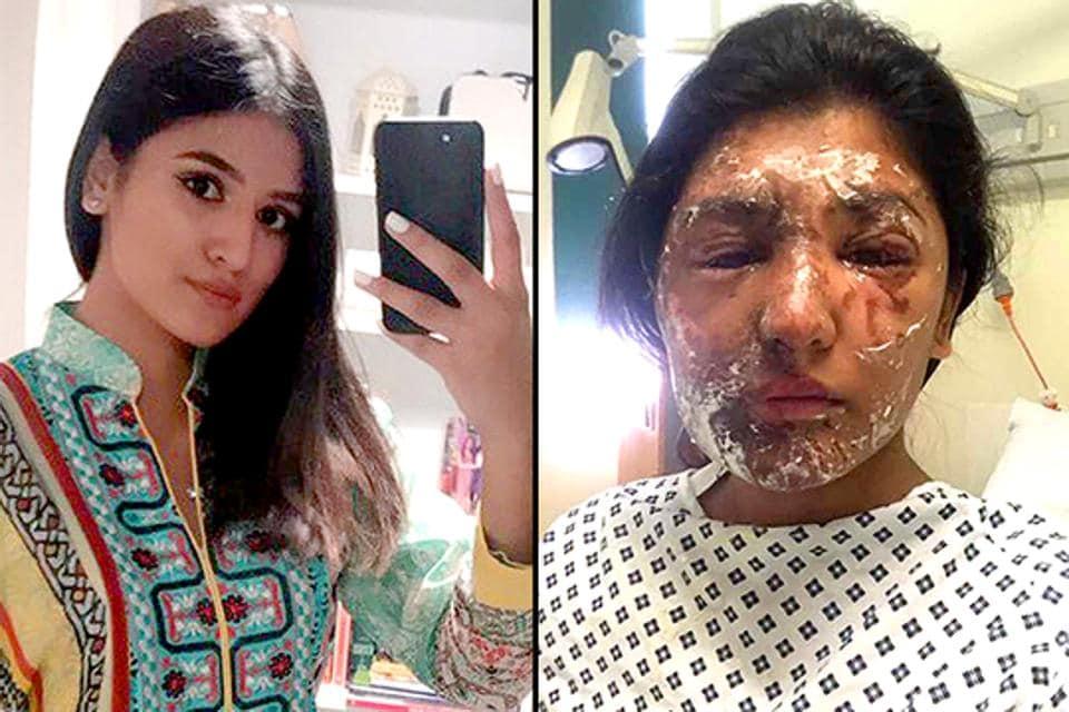acid attack victim,recovery from acid attack,social media