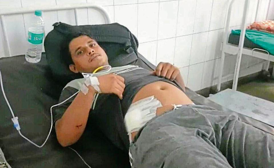 One of the victims, Sheikh Ali Khan, at Haridwar district hospital.