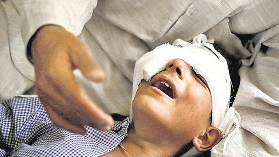A father comforts his son whom he said was injured by pellets shot by security forces in Srinagar on August 18, 2016.