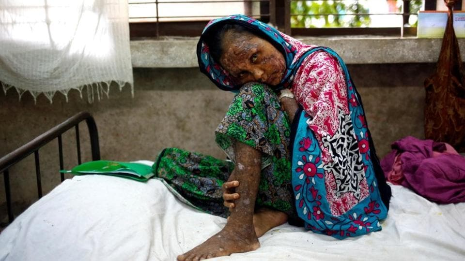 Shaheda, 40, a Rohingya refugee woman who said her body was burnt when the Myanmar Army set fire to her house, receives treatment at the Sadar Hospital in Cox's Bazar, Bangladesh, on September 19, 2017.