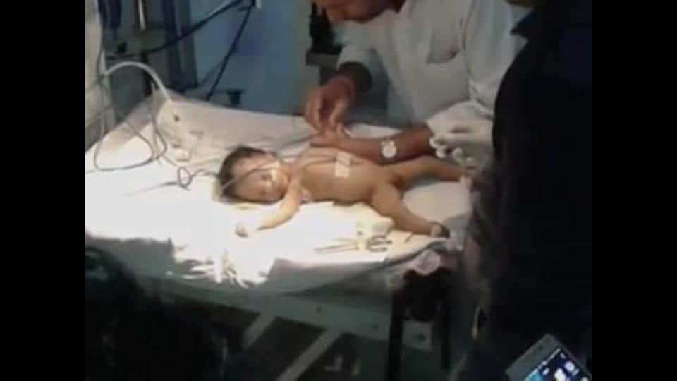 The infant died during treatment at hospital.