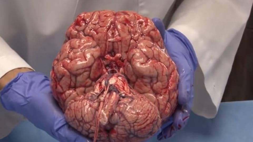 Did You Know The Brain Can Be Damaged By A Thumb Watch The Video Of