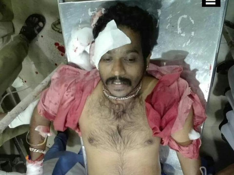 Nidesh (28), the RSS worker, was critical and he had been shifted to the Kozhikode Medical College hospital.