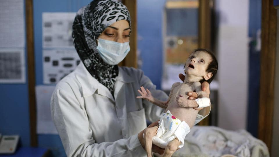 One-month-old Sahar, suffering from severe malnutrition, is carried by a nurse at a clinic in the rebel-controlled town of Hamouria, in the eastern Ghouta region on the outskirts of the capital Damascus. Sahar died on Sunday.