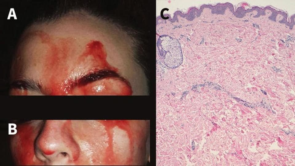 The bleeding episodes last from one to five minutes, and can occur while she is asleep and during physical activity.