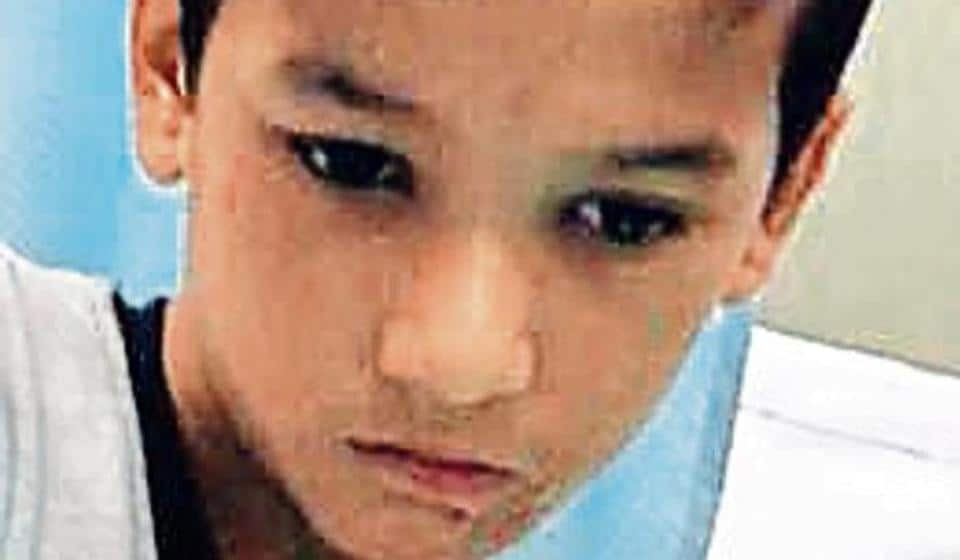 Delhi doctors reconstruct fingers for 10-year-old from his toes