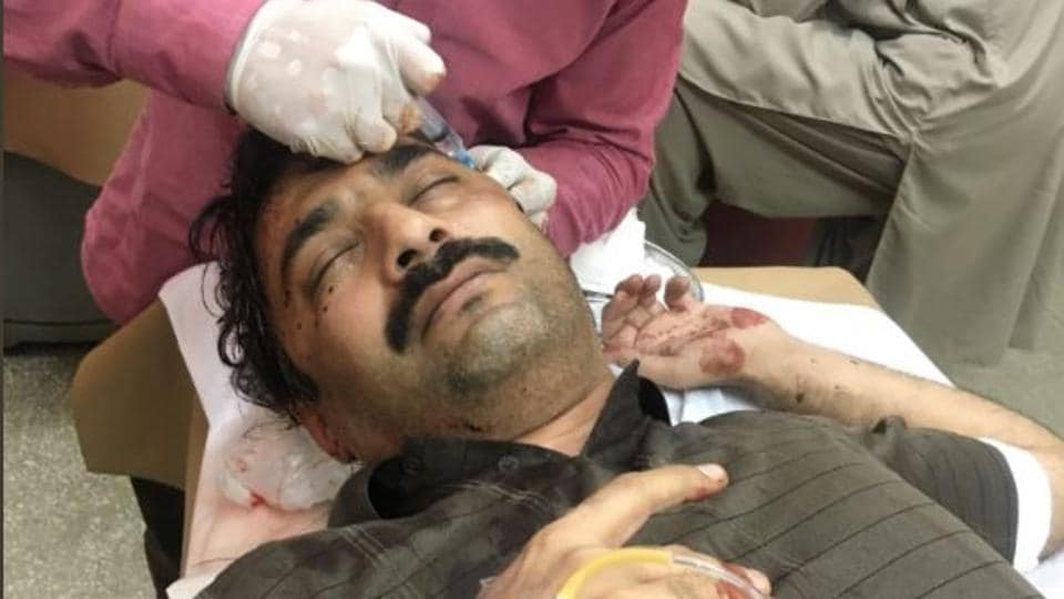 Pakistani journalist Ahmed Noorani being treated in hospital after he was attacked by unidentified men at a busy roundabout in Islamabad on October 27, 2017.