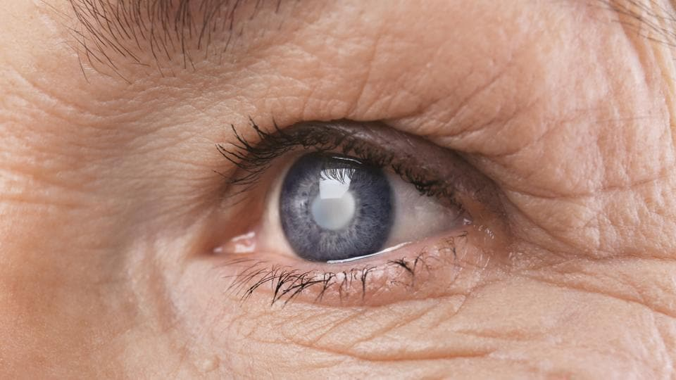 Previous studies have suggested an association between cataract surgery and decreased risk from all causes of mortality potentially through a mechanism of improved health status and functional independence.